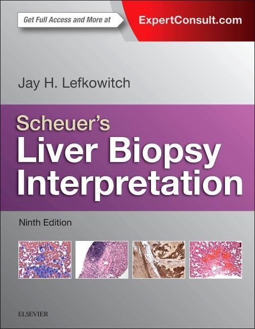 Photo of Scheuer's Liver Biopsy Interpretation / SKU: 9780702055485