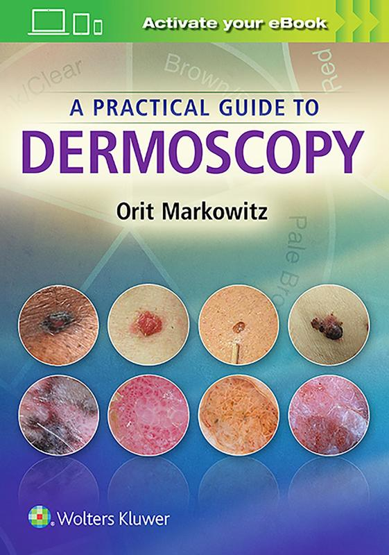 Photo of A Practical Guide To Dermoscopy / SKU: 9781451192636