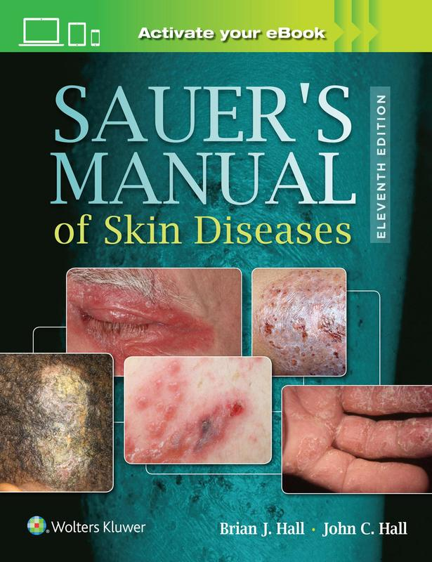 Photo of Sauer's Manual Of Skin Diseases / SKU: 9781496329936